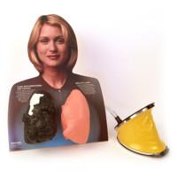 Lou-Wheeze smoker's lung comparison model